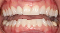 Invisalign Treatment + Emprethins = Maximum Aesthetics - #smilestories