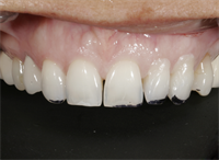 Tools for Achieving Ideal Gingival Architecture