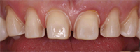 Anterior Veneer Prep for Closing Black Triangles
