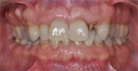 Peri-Implant Esthetics Treatment Planning
