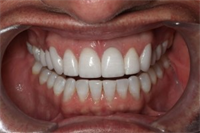 Overcontoured Teeth: The Fifth Violation of Smile Design