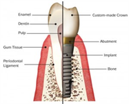 Root Canal Retreatment or Implant?