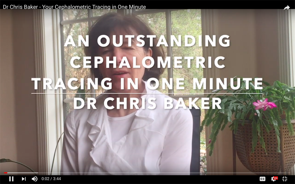 An Outstanding Cephalometric Tracing in One Minute