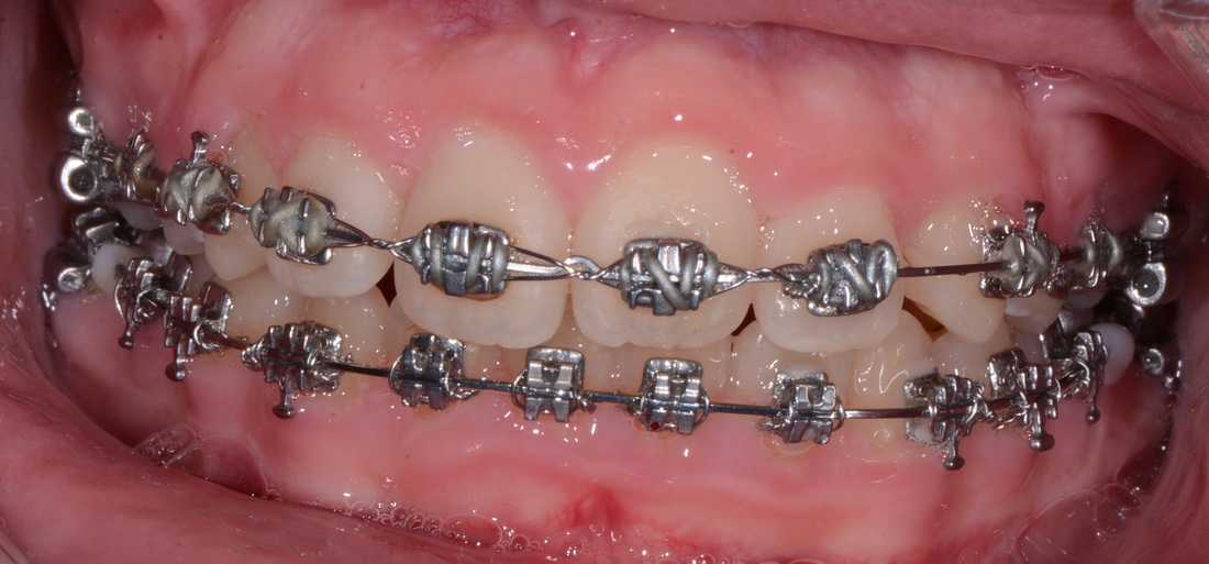 Yes! Accept Transfer Orthodontic Cases! (Most of the time.) Part II