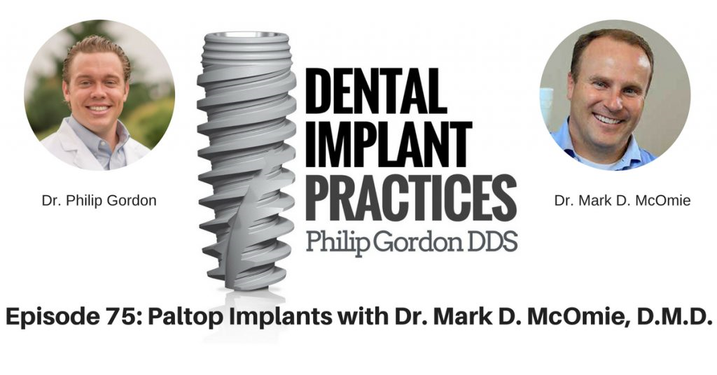 075 Paltop Implants with Dr. Mark D. McOmie, D.M.D.