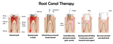 How Dentist Can Save Time While Using Latest Equipment For Root Canal Therapy