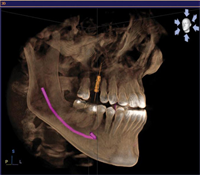 3D Imaging is a Big Leap for Dental Technology