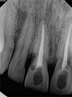 How to Restore Resorption Case?