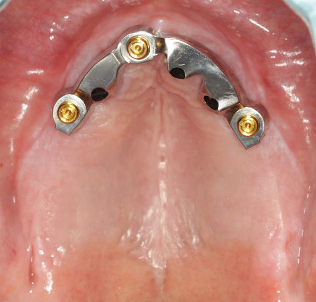 Guidelines for Bar Over dentures