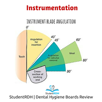 Q: The optimal blade angulation for the removal of deposits is: