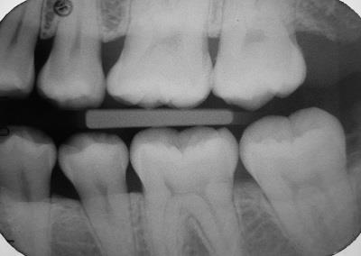 Dental Radiographs - Part 1: Bite-Wings and Periapicals