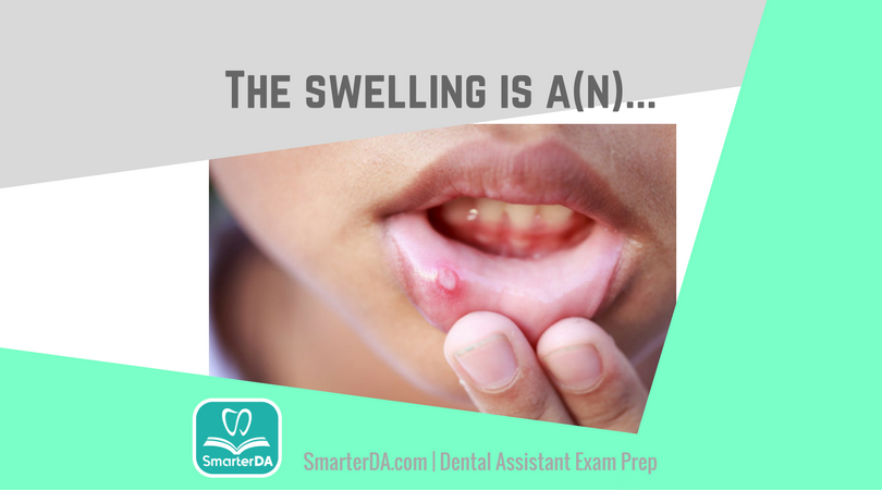 Q: This type of swelling is a(n):