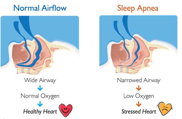 Patient Selection: Obstructive Sleep Apnea