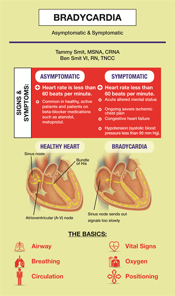 What would you do for bradycardia?