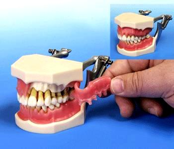 At BUYAMAG INC WE PROVIDE DENTAL PERIODONTAL MODEL FOR PATIENTS DEMONSTRATION CLEAR SHOWING ORAL PERIODONTAL DISEASE, BONE LOSS TOOTH MOBILITY