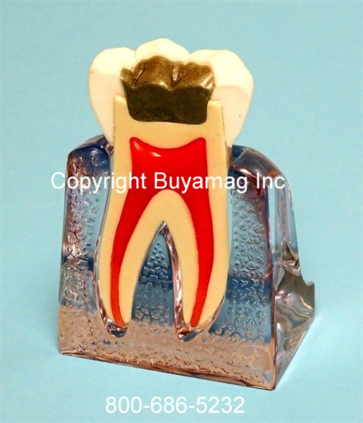 Buyamag's Endodontic Models great tools for endodontic practicing, patients demonstratio, practice increase for dental professionals who specialise endodontic procedures.
