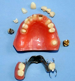 OUR ESTORATION DENTAL MODEL SHOWS VORIETY MOST FREQUENT TECHNIQUES COMBINATIONS USED BY DENTAL DOCTORS