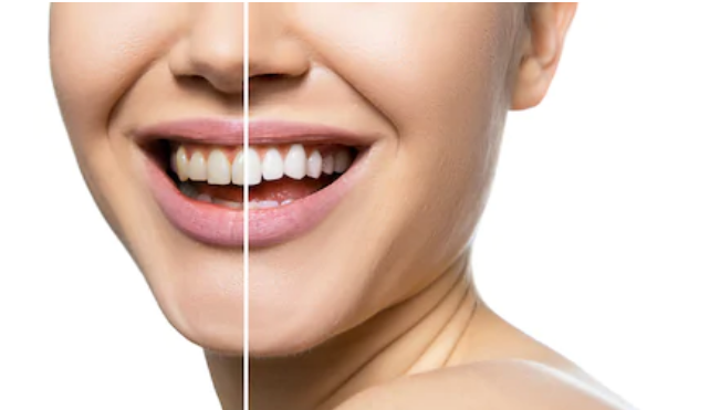 Look and Feel Good with These Easy Dental Hacks!