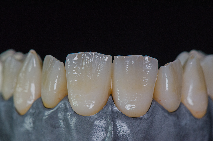 Monolithic Zirconia Closes the Link Between Digital Design and Bringing that Data into the Analog World