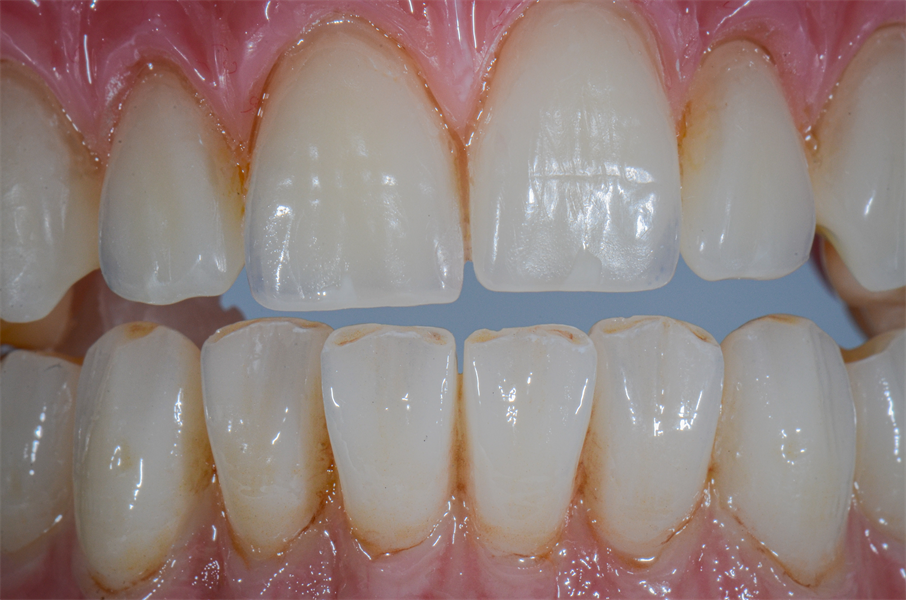 What the Industry Has Been Waiting For: the Ability to Match Denture Teeth to Monolithic High Strength Zirconia.