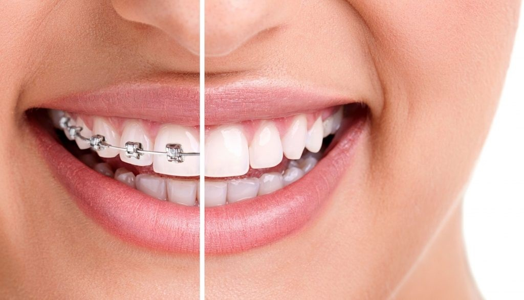 Best Invisible Braces in India